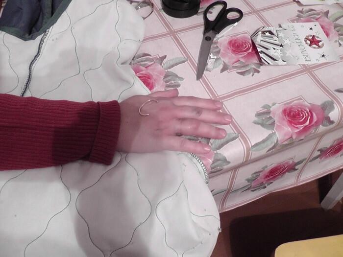Кольцо застряло на пальце (1)